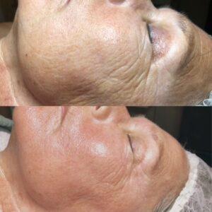 afbeelding: zijkant gezicht, foto voor en na rimpelbehandeling